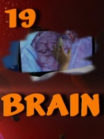 Brain.E19